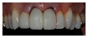 IMPROVE ESTHETIC RESULTS